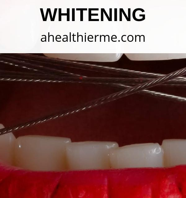 A Comprehensive Guide to Get Started with Teeth Whitening