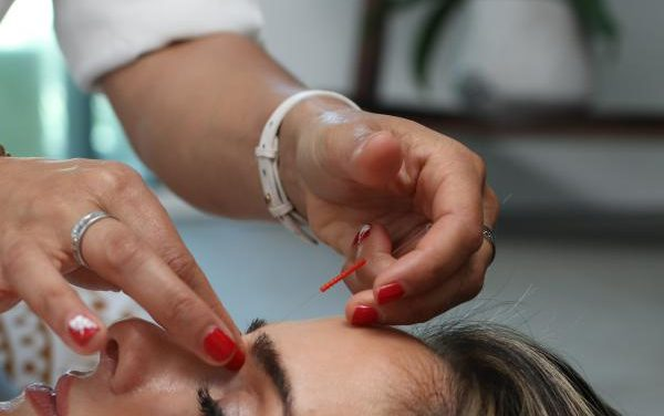 A Comprehensive Guide to Treat Migraine with Acupuncture