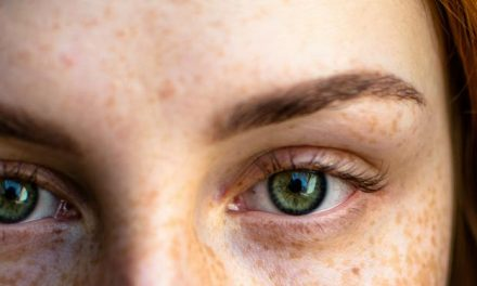 The Ultimate Guide to Learn how To Treat Large Pores